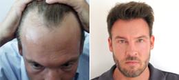 Haare implantieren schweiz