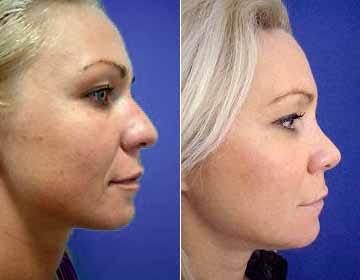 Frauen nachher bilder nasenkorrektur vorher Vorher Nachher
