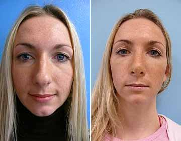 Nasenoperation Vorher Nachher Praxis Swiss Prof Mang